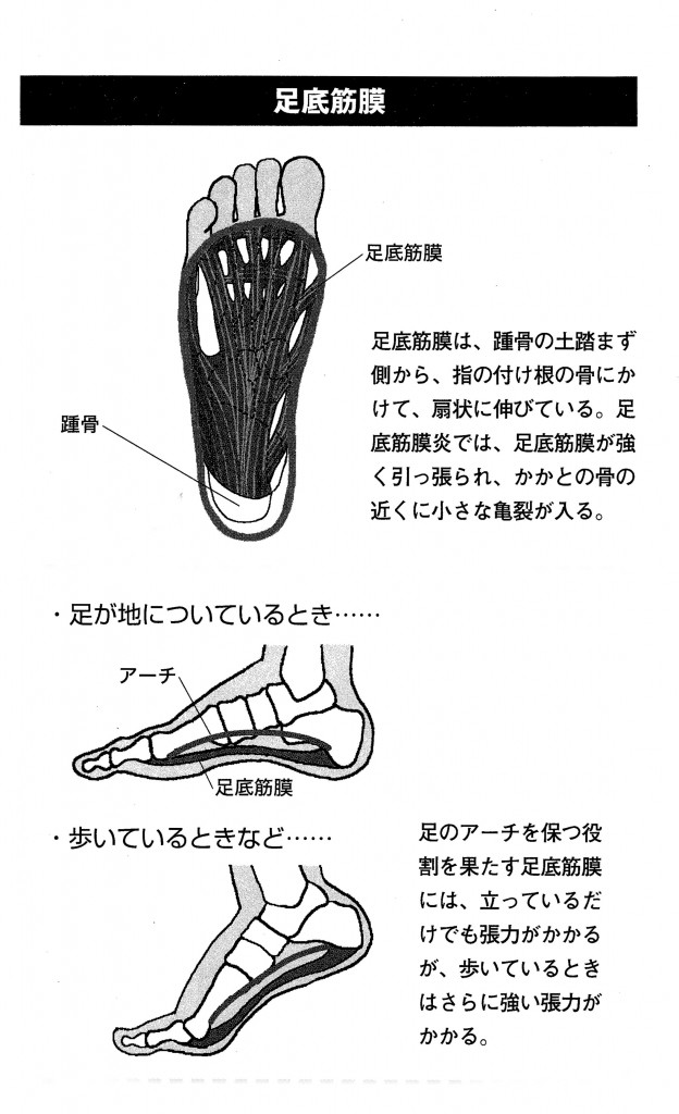 足底筋膜の解説イラスト