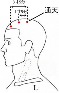 経絡経穴 足の太陽膀胱経 通天