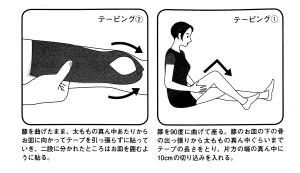 大腿四頭筋テーピング